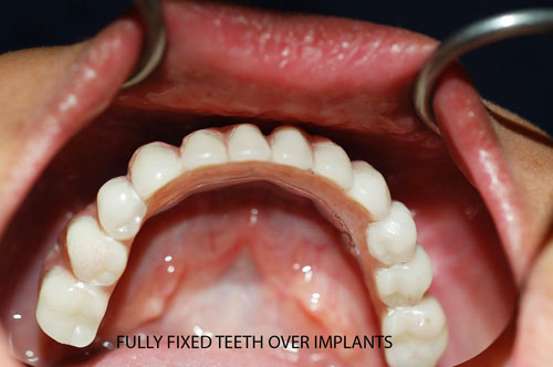 Mother Dental Implant Clinic